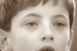 child with dark circles under eyes