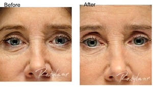 eyes before and after Restylane treatment