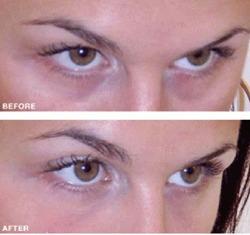 under eye fillers