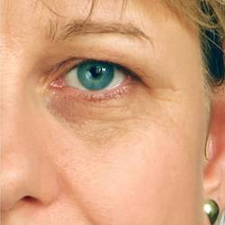 home remedies for eye wrinkles treatments