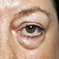 under eye bags home remedies